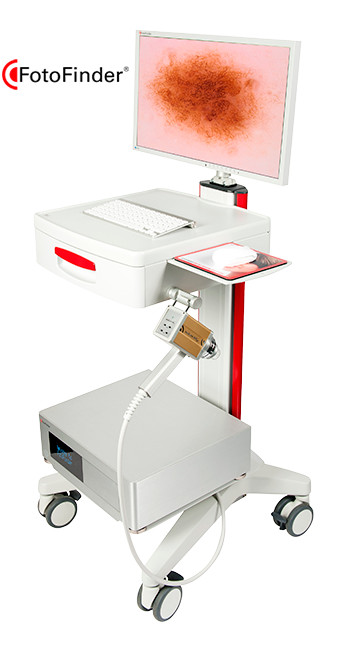 Dermatoscopio digital vexia